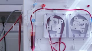 An apparatus for blood transfusion
