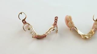 Golden teeth dentures