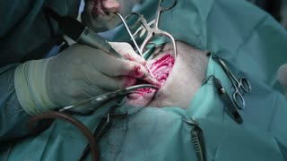 A vet surgeon performs open discectomy - removal of a herniated disc of a dog. Closeup footage.