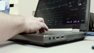 doctor going over the EKG readings on a laptop