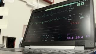 EKG monitor on a laptop in doctors office.