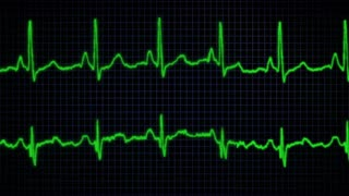looping Heart monitor graphic