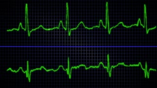 looping Heart EKG graphic