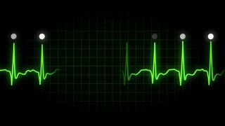 An animated heart monitor EKG line. Loopable. With luma matte