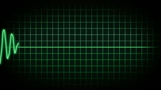 EKG Animated Background