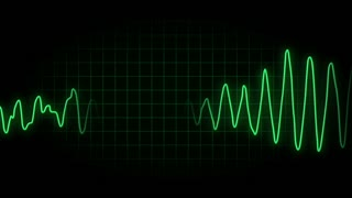 EKG Loop Animated Background