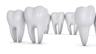 Animation dental brackets and tooth implant on a white background. 3D render.Alpha channel is included.
