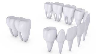 Animation dental brackets and tooth implant on a white background.Alpha channel is included.