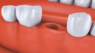Animation dental brackets and tooth implant. 3D render.