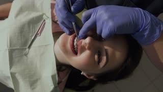 Orthodontist put on elastic on braces. Healthy teeth. Good smile of the patient 4k