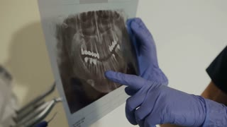 X-ray of the teeth in the hands of the dentist. Female dentist shows a young man's ill tooth on a radiograph. 4k