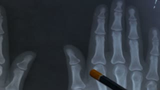 Doctor examining the x-ray of the hand. Arthritis or arthrosis