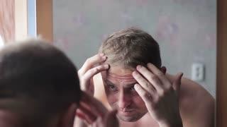 Man upset by hair loss or dandruff