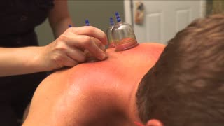 Man receives Chinese Cupping Therapy treatment on back