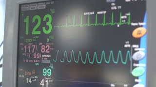monitor of indications of action of heart, frequency and amplitude of reductions.