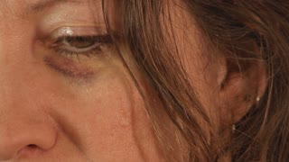 Close Up of Woman Crying with a Black Eye
