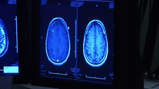 Radiologist Watching Monitors Of Brain Scan