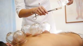 Alternative Asian Tibetan medicine, treatment using glass jars, jars placement