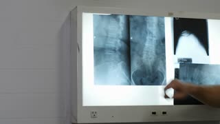 Pointing to things on an x ray photograph