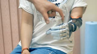 Young girl with amputated hand using robotic prosthesis. 4K.