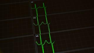 Cardiogram. Green heart beat line, ECG monitor. Heartbeat ECG.