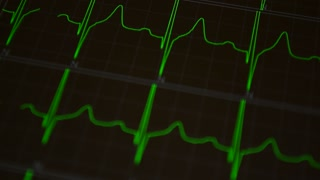 Cardiogram medical video background
