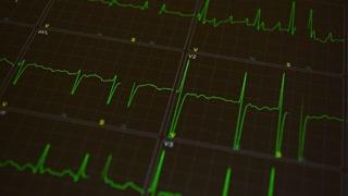 Cardiogram. Green heart beat line. Heartbeat ECG. Heart trace.