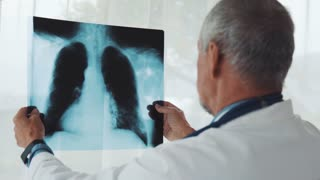 Senior doctor looking at chest x-ray in his office. Male doctor examining an x-ray
