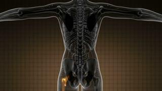 hip bones anatomy medical scan