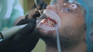 Doctor and patient with lip dilator in the dental office, close up of polishing with stomatological brush