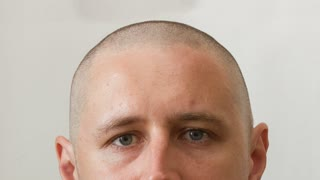 Head of man - growing process of hair of young caucasian man