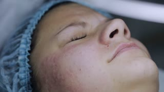 beautician cleans the face of acne with a needle