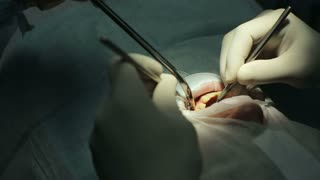 Stomatology - dental surgery during operation of doctors