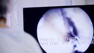 laparoscopy operation in the operation theatre