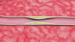 Artery cross-section showing stent deployment.