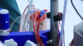 Heart lung machine pumping blood in operating room