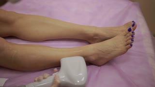 Laser hair removal procedure on female legs