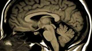 CT scan of the brain