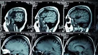 X-Ray Skeleton Anatomy View