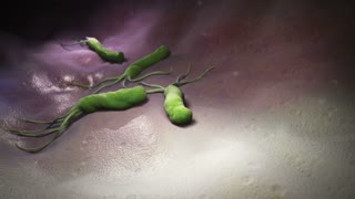 HELICOBACTER PYLORI is a Gram-negative, microaerophilic bacterium found in the stomach