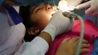 Asian girl at the dentist has tooth treated, Tilt up shot
