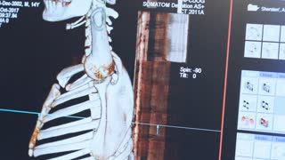 Doctor working with magnetic resonance imaging of patient skeleton. Radiography expertise and consultation in clinic. Computed tomography of human rib cage