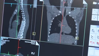 Magnetic resonance image of human body on monitor. Ct-scan expertise in modern medical centre. Computed tomography x-ray diagnostics. 3d mri scan of human rib cage
