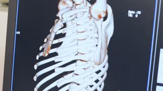 Magnetic resonance imaging of human skeleton on display. Professional radiography expertise. Computed tomography x-ray diagnostics. 3d mri scan of human rib cage