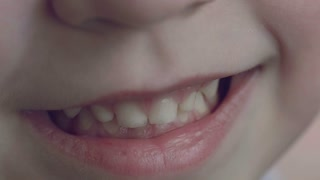 Mouth of a boy with baby teeth close-up