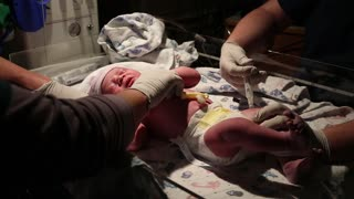newborn baby after birth being taken care of by nurses