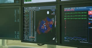 Monitors displaying information during a Cardiac catheterization