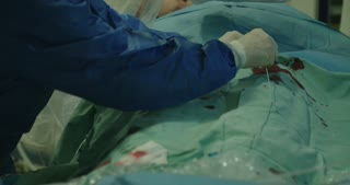 Surgeons preforming Cardiac catheterization on a patient in a hospital