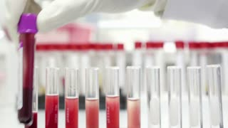 Scientist testing in laboratory for analysis or researching