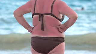 Back view of sunburned woman. Obese lady on the beach. How to deal with sunburn.